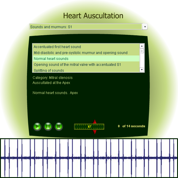 Chest and heart auscultation - Learn how to auscultate the heart.